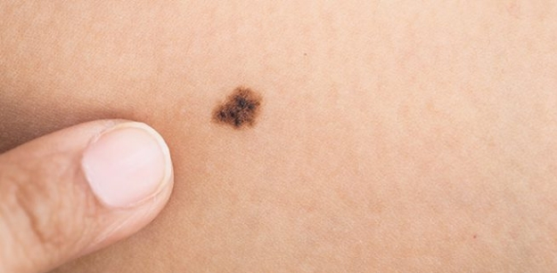 Simplest Ways To Conceal Your Birthmark