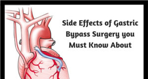 Side Effects of Gastric Bypass Surgery you Must Know About