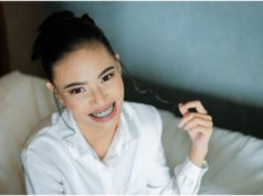 How Braces Improve Your Smile and Overall Oral Health