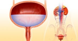 8 Bladder Control Tips To Deal With MS (Multiple Sclerosis)