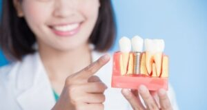 7 Important Reasons Why Dental Implants are the Best Choice for Replacing Missing Teeth