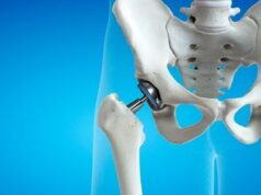 What Does An Orthopaedic Doctor Do For Pain Relief?