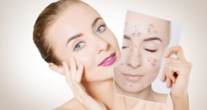 Get Rid of Your Acne Dilemmas Once and for All