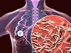 What is Tuberculosis? Types symptoms and prevention