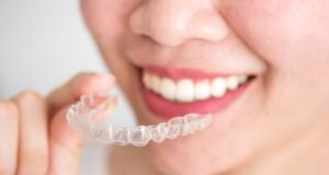 How Long Do Invisalign Braces Take to Work